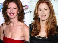 Dana Delany plastic surgery before and after photos 1