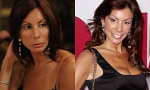 Danielle Staub breast Implants Surgery before and After Boobs Job Photos 1