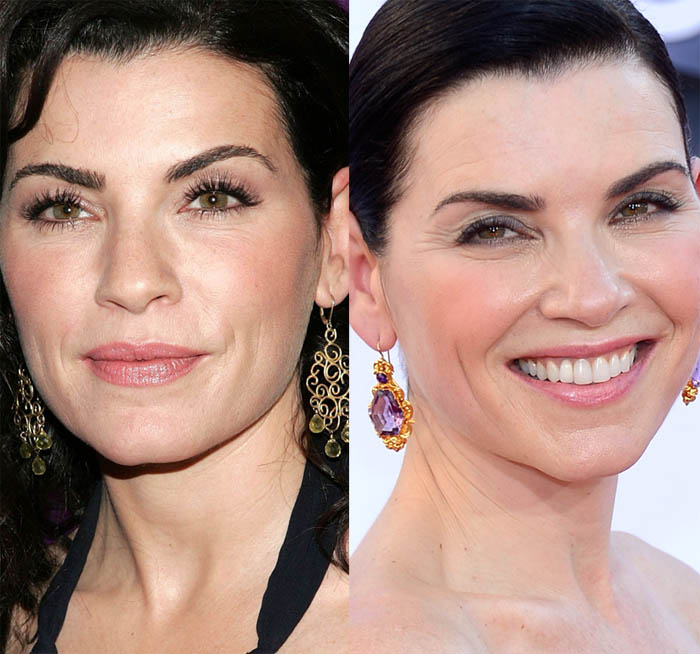 Julianna Margulies Plastic Surgery Before and After Face Photos 2