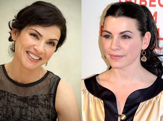Julianna Margulies Plastic Surgery Before and After Face Photos