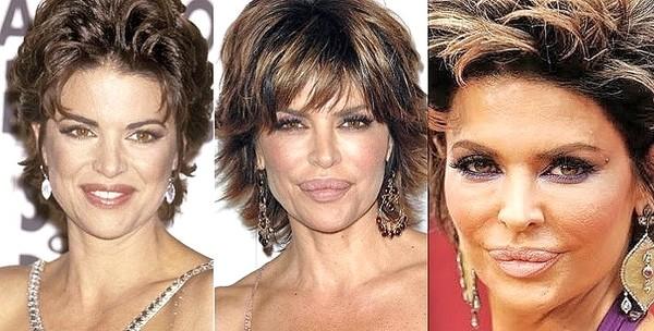Lisa Rinna lip surgery before and after photos 1