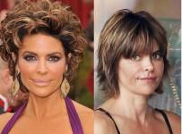 Lisa Rinna lip surgery before and after photos 2