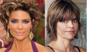 Lisa Rinna lip surgery before and after photos 2