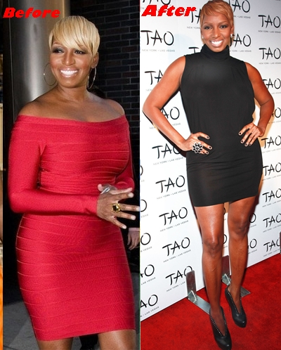 NeNe Leakes breast reduction surgery before and after boobs job photos 1