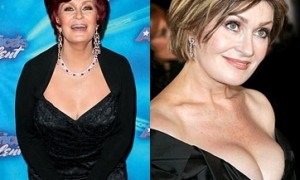Sharon Osbourne Breast Implants Surgery Before and After Boobs Job Photos 1