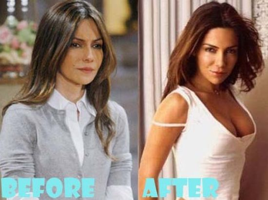 Vanessa Marcil breast implants surgery before and after boobs job 1
