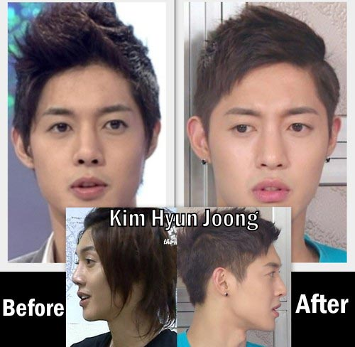 Face recognition korean celebrity surgery