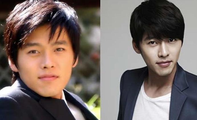Kim ah Joong Plastic Kim Hyun Joong Plastic Surgery