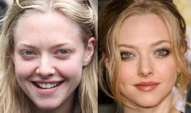 Amanda Seyfried plastic surgery before and after pictures nose job