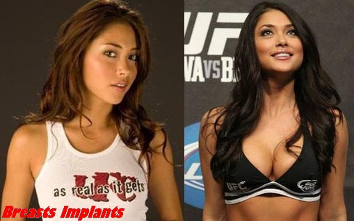 Arianny Celeste plastic surgery before and after photos 1