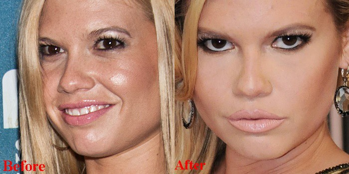 Chanel West Coast Lip Fillers Before And After Pictures