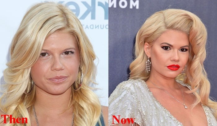 Chanel West Coast Nose Job Before And After Photos