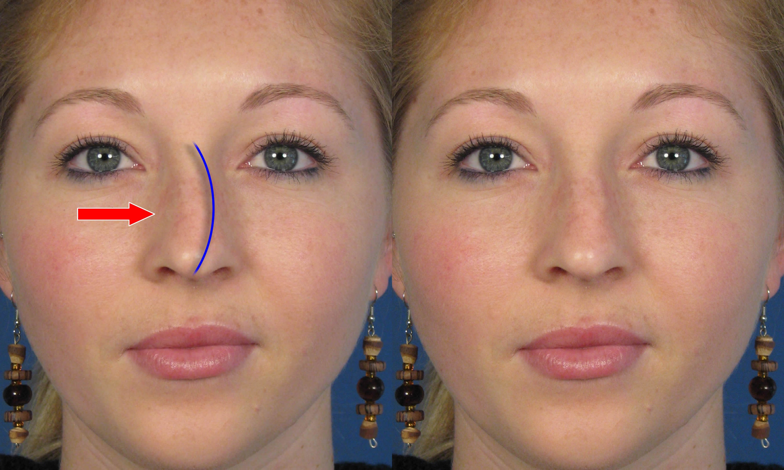 Very Crooked Nose After Septo-rhinoplasty? (photo) Doctor ...