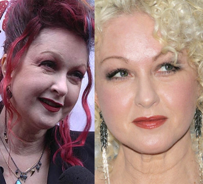 Cyndi Lauper plastic surgery before and after pictures 1