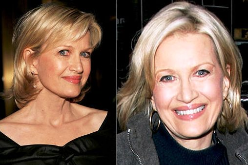 Diane Sawyer Plastic Surgery Before and After Face Photos 1