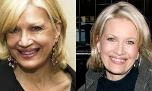 Diane Sawyer Plastic Surgery Before and After Face Photos 3