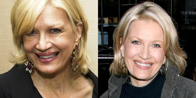 Diane Sawyer Plastic Surgery Before And After Face Photos