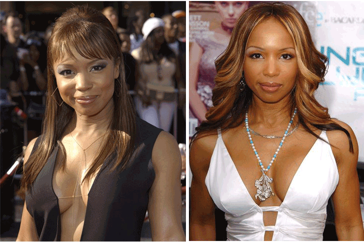 Elise Neal Plastic Surgery Before And After Photos 1