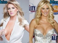 Kim zolciak Breast Implants Surgery Before and After BoobS Job Photos 1