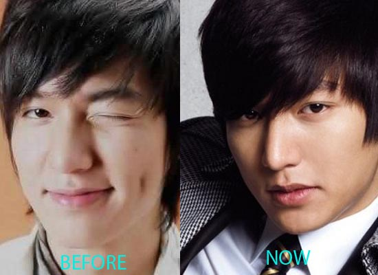 Lee Min ho plastic surgery before and after cosmetic surgery pics