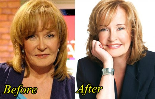 Marilyn Denis Plastic Surgery Before And After Botox, Facelift Photos