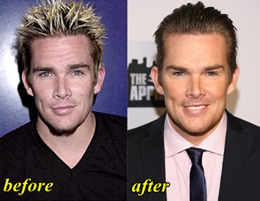 Mark Mcgrath Plastic Surgery Before And After Photos 1