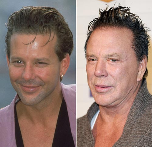 Mickey Rourke plastic surgery face before and after photos 1