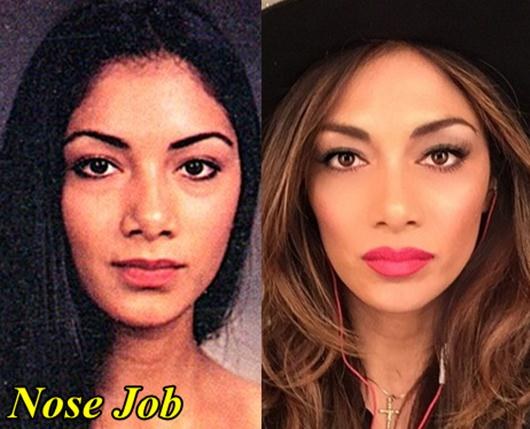 Nicole Scherzinger plastic surgery before and after 1