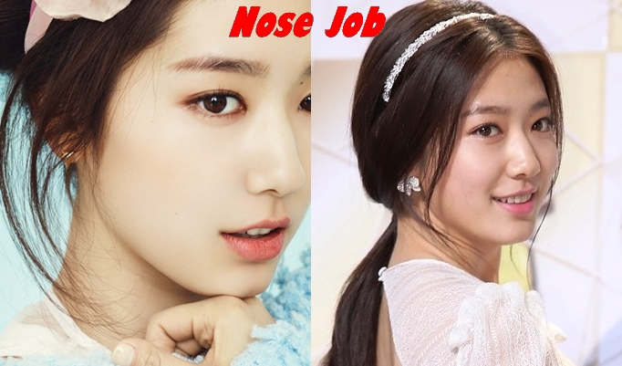 Park shin hye plastic surgery nose job before and after photos 2