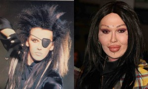 Pete Burns Plastic Surgery Before and After Photos, Pictures 2