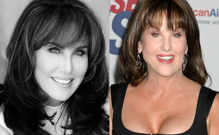Robin Mcgraw plastic surgery Before and After Lip Jobs, Botox Photos 2