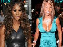 Serena Williams plastic surgery before and after pictures 3