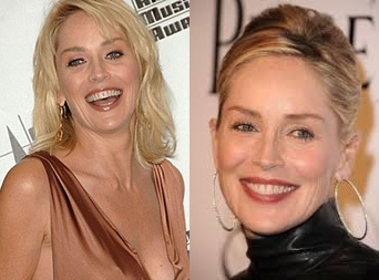 Sharon Stone Plastic Surgery Before And After Photos Botox, Eyelid 1