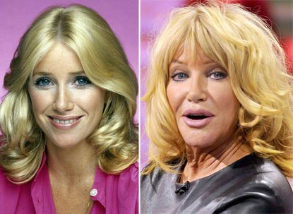 Suzanne Somers plastic surgery before and after face photos 1