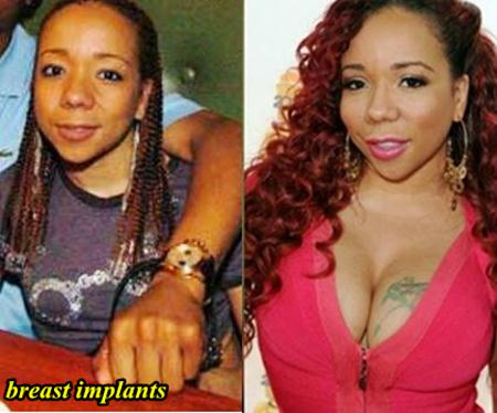 Tameka Cottle plastic surgery before and after photos 1