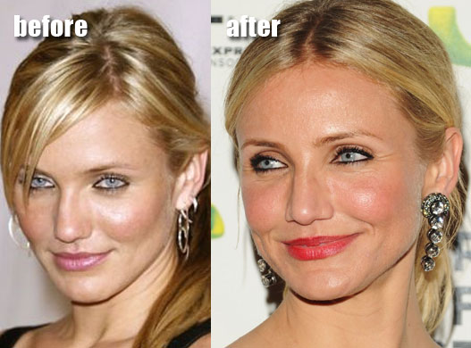 cameron diaz plastic surgery Before and After Face Photos 2