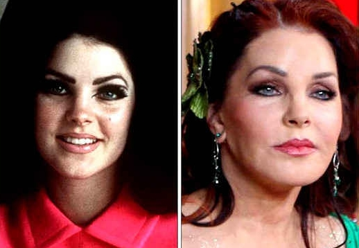 Priscilla Presley Plastic Surgery Facelift Before And