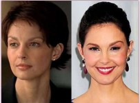 Ashley Judd plastic surgery before and after photos 2