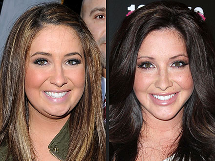 Bristol Palin plastic surgery before and after photos