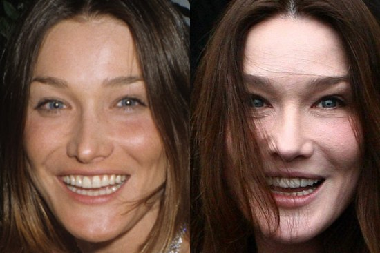 Carla Bruni awful plastic surgery before and after photos 2