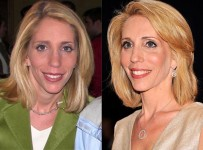 Dana Bash plastic Surgery Before and After Photos 1