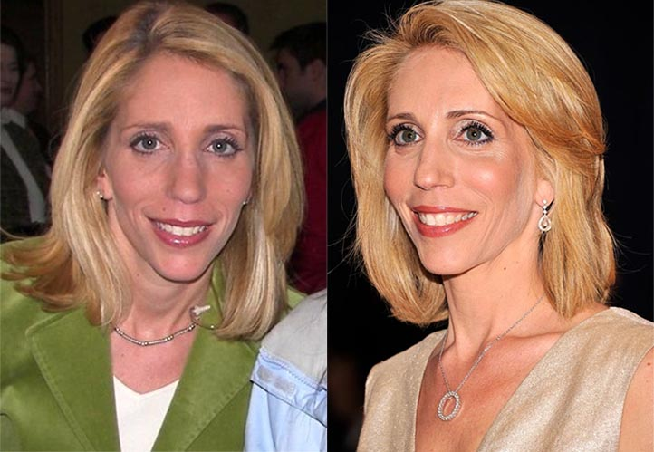 Dana Bash Plastic Surgery Before And After Photos
