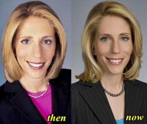 Dana Bash plastic Surgery Before and After Photos 2