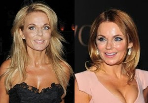 Geri Halliwell plastic surgery botox before and after face photos 1