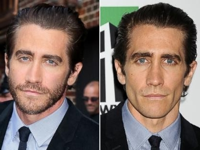 Jake Gyllenhaal nose job plastic surgery before and after pictures