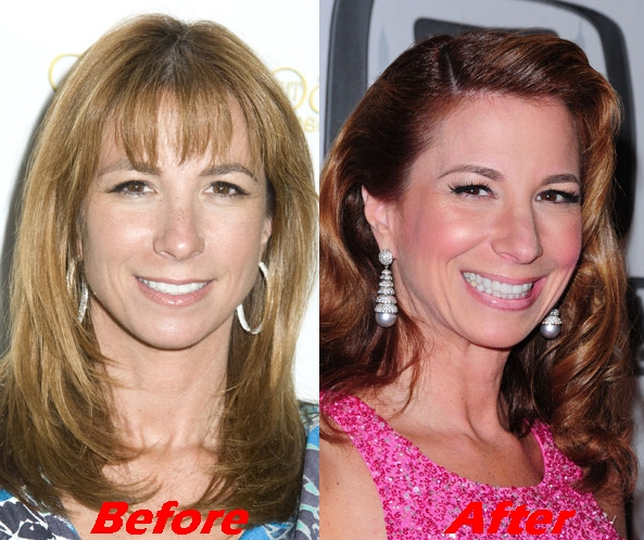 Jill Zarin Plastic Surgery Before and after Face Pictures