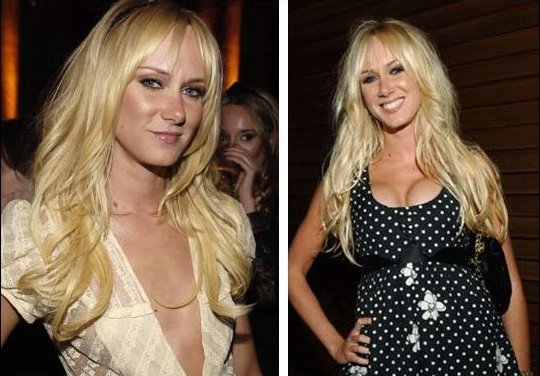 Kimberly Stewart Breast Implant Plastic Surgery Before and After Boobs Job Photos 1