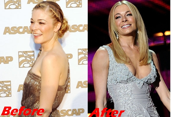 LeAnn Rimes Plastic Surgery Breast Implants Before And After Boobs Job Photos 1