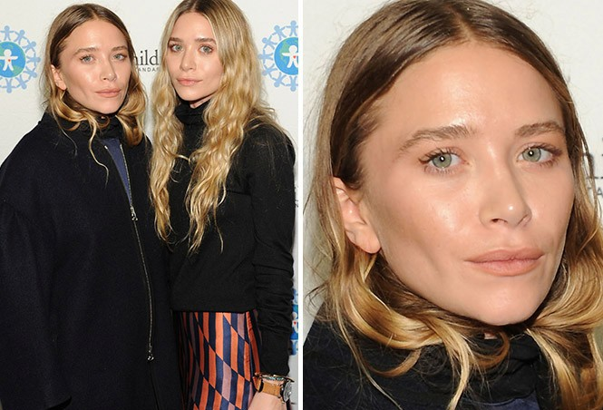 Mary Kate And Ashley Plastic Surgery Before And After Photos 1