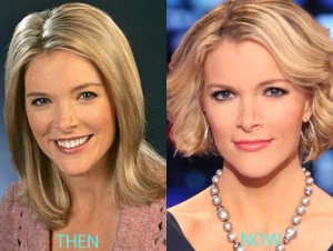 Megyn Kelly plastic Surgery Before and After Breast, Nose Job Photos  2
